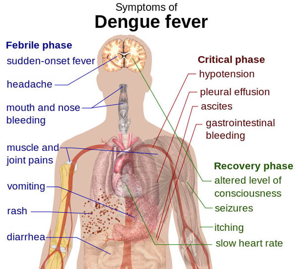 Dengue fever entails many severe symptoms