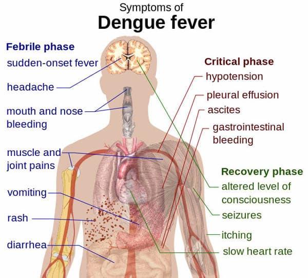 Dengue fever entails many severe symptoms