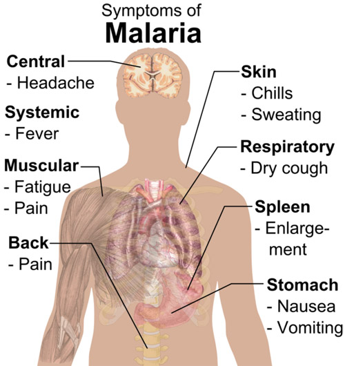 Malaria has many alarming symptoms, and may cause death if one does not seek medical advice